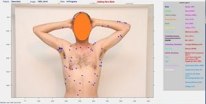 The DermaCompare system identifies and classifies moles and lesions. (Image courtesy of Emerald Medical Applications/Israel21C)
